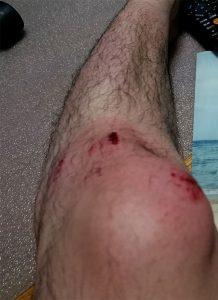 ケガ直後の膝